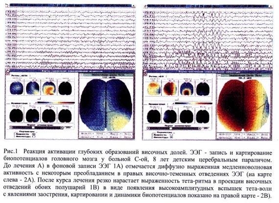 Ээг при рассеянном склерозе результаты